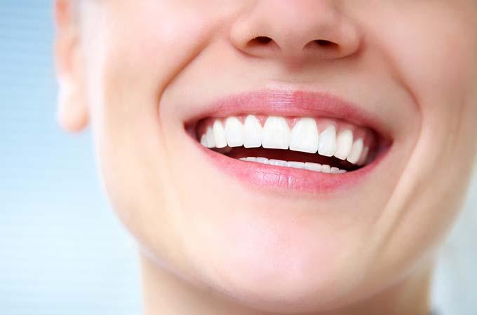 提議鑲牙齒不必種植牙齒是為什麼?鑲牙和植牙哪一個比較好