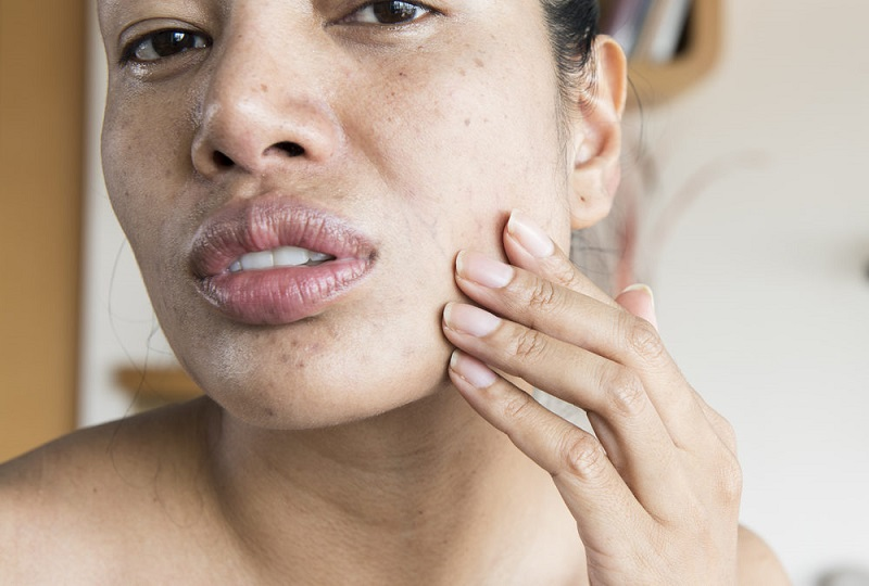 為何你肌膚護理那麼勤奮,肌膚還非常差?